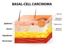 Basal Cell Carcinoma Symptoms