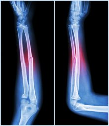 Bone Fracture: Who's Vulnerable? And How Can You Lower Your Risk?