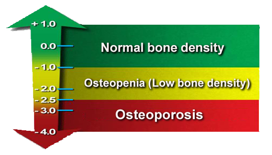 How to Understand Bone Density Score How to Understand Bone Density Score new picture