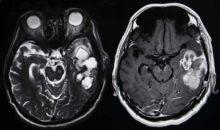Brain Tumor Causes Aren't Always Clear