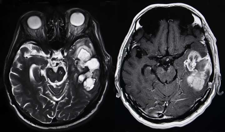 brain tumor causes