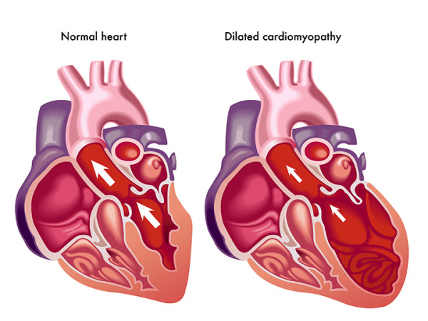 cardiomyopathy what causes an enlarged heart university health news