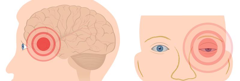 תוצאת תמונה עבור cluster headache