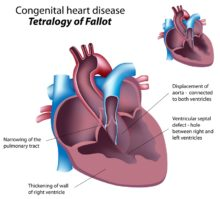 Congenital Heart Disease: How It Can Affect Us in Adulthood