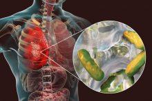 Cystic Fibrosis: Understanding a Genetic Respiratory Disease