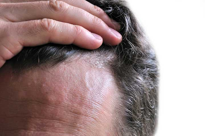 12 Dandruff Causesand How To Stop The Itch University Health News