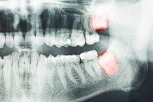 When to Remove Wisdom Teeth
