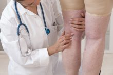 Sclerotherapy for Varicose Veins, Hemorrhoids, and More