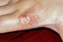 Eczema: What You Can You Do About This Common But Complex Skin Condition