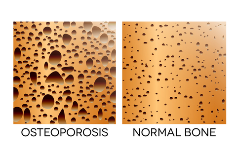 """There are a variety of bone density tests available, but the """"gold standard"""" test for diagnosing osteoporosis is the DEXA scan."""