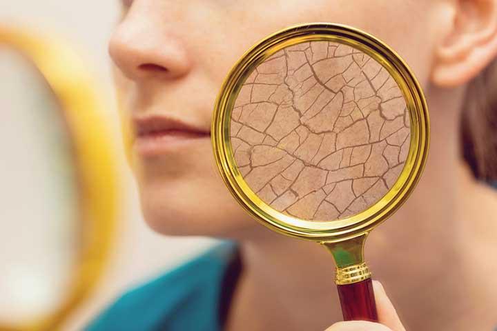 natural dry skin remedies