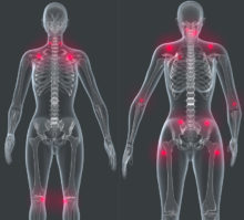Fibromyalgia: Shedding Light on a Mysterious Condition