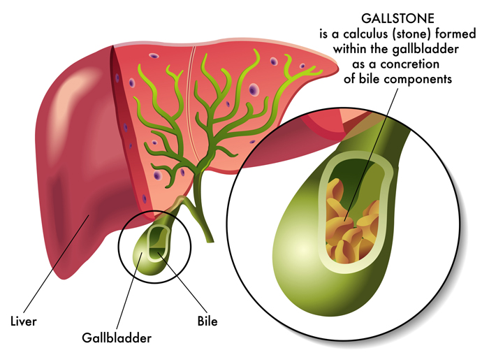 The Gallbladder Diet: How Your Food Choice Can Lower the ...