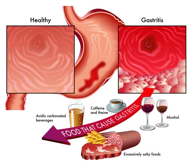 Gastritis  How To Recognize Common Symptoms