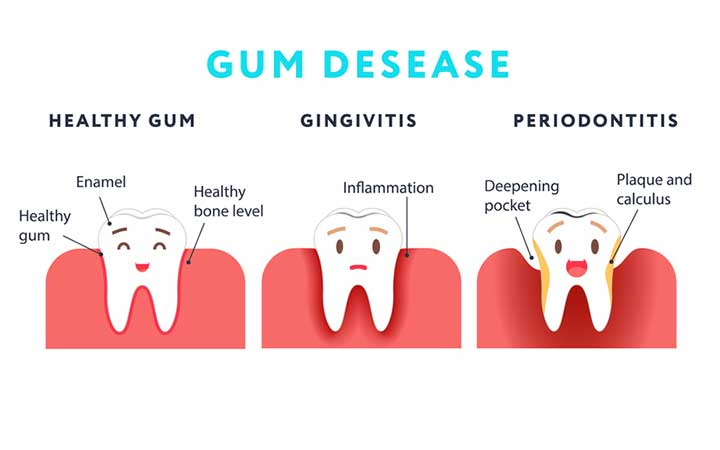 how to get rid of gingivitis in one day