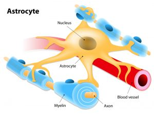 glioblastoma astrocyte