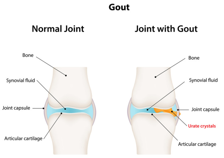How Long Does Gout Last? - University Health News