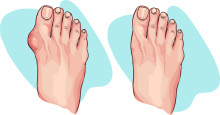 Add the DASH Diet to the List of Gout Remedies