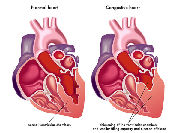 what is congestive heart failure