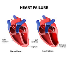 Understanding Heart Failure: Symptoms to Know