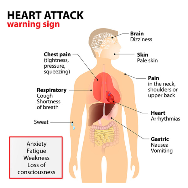 What Causes Heart Attacks Signs To Heed