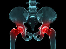 Hip Bursitis Can Cause Pain and Impede Mobility