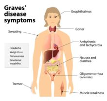 Hyperthyroidism: Natural Treatment for Graves' Disease