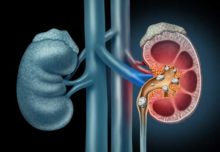 Kidney Stones: How to Manage the Pain and Discomfort