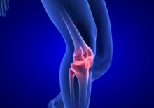"""Knee Pain Remedies: Start with Classic """"RICE"""" Advice"""