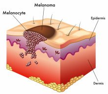 Melanomas Can Affect All Races