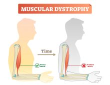 Muscular Dystrophy: What Causes This Disabling Condition?