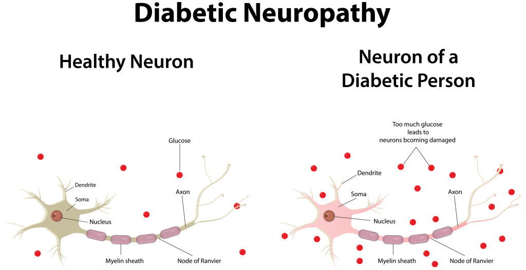 healthy and diabetic neuron
