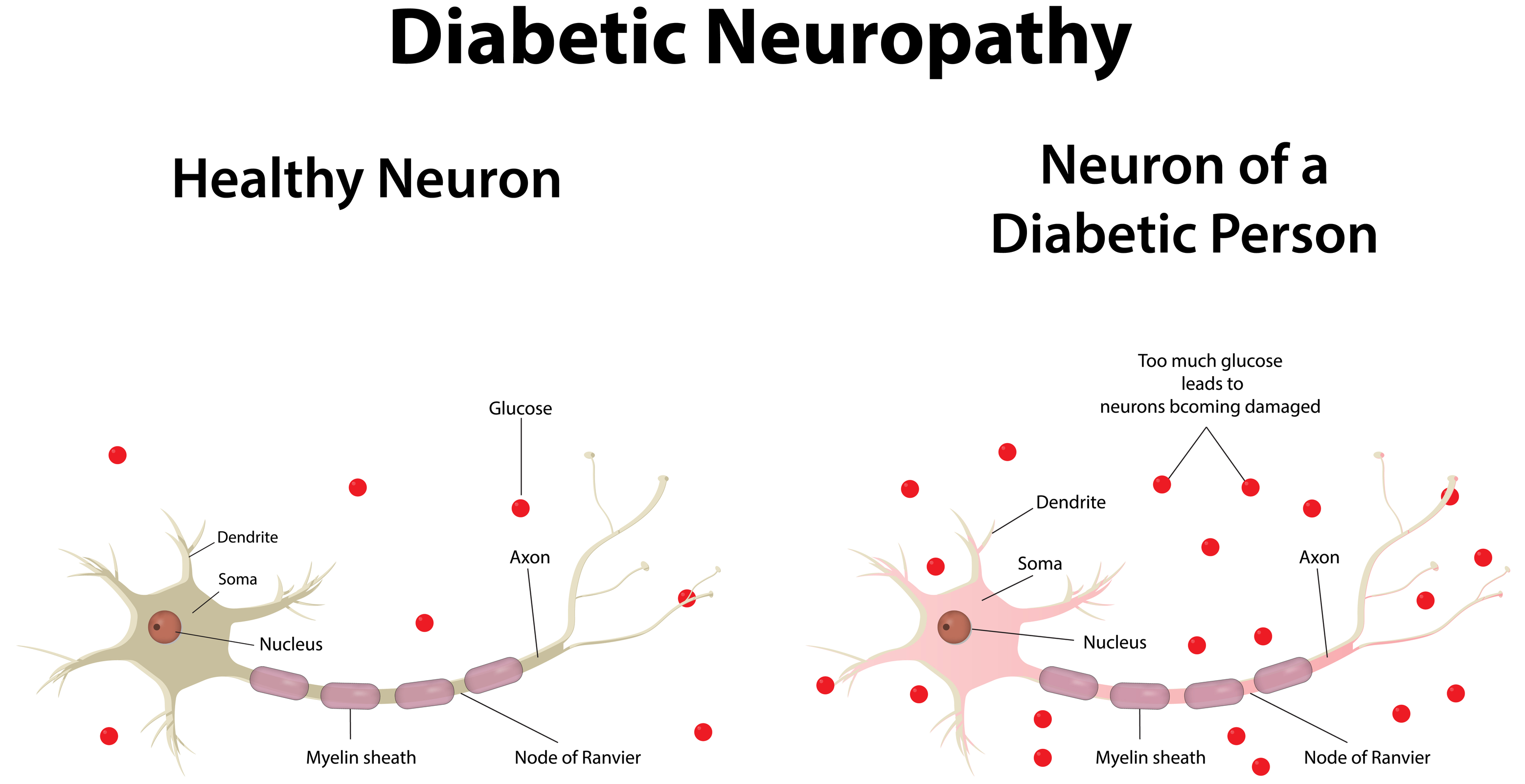 neuropathy pathways - Cannabis Help With Diabetes Treatment