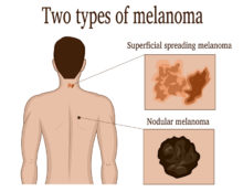 What Is Nodular Melanoma?