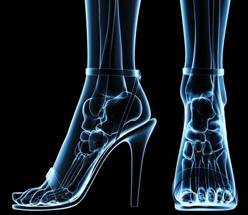 pain in heel of foot