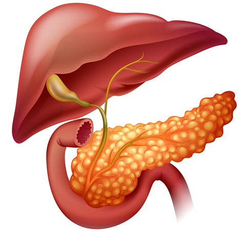 pancreatic cancer symptoms