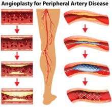 Peripheral Artery Disease Is Common, But Not Unavoidable or Untreatable