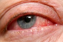 6 Ways to Avoid Pinkeye