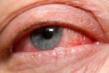 6 Ways to Avoid Pinkeye