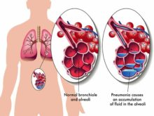 Pneumonia: What You Need to Know