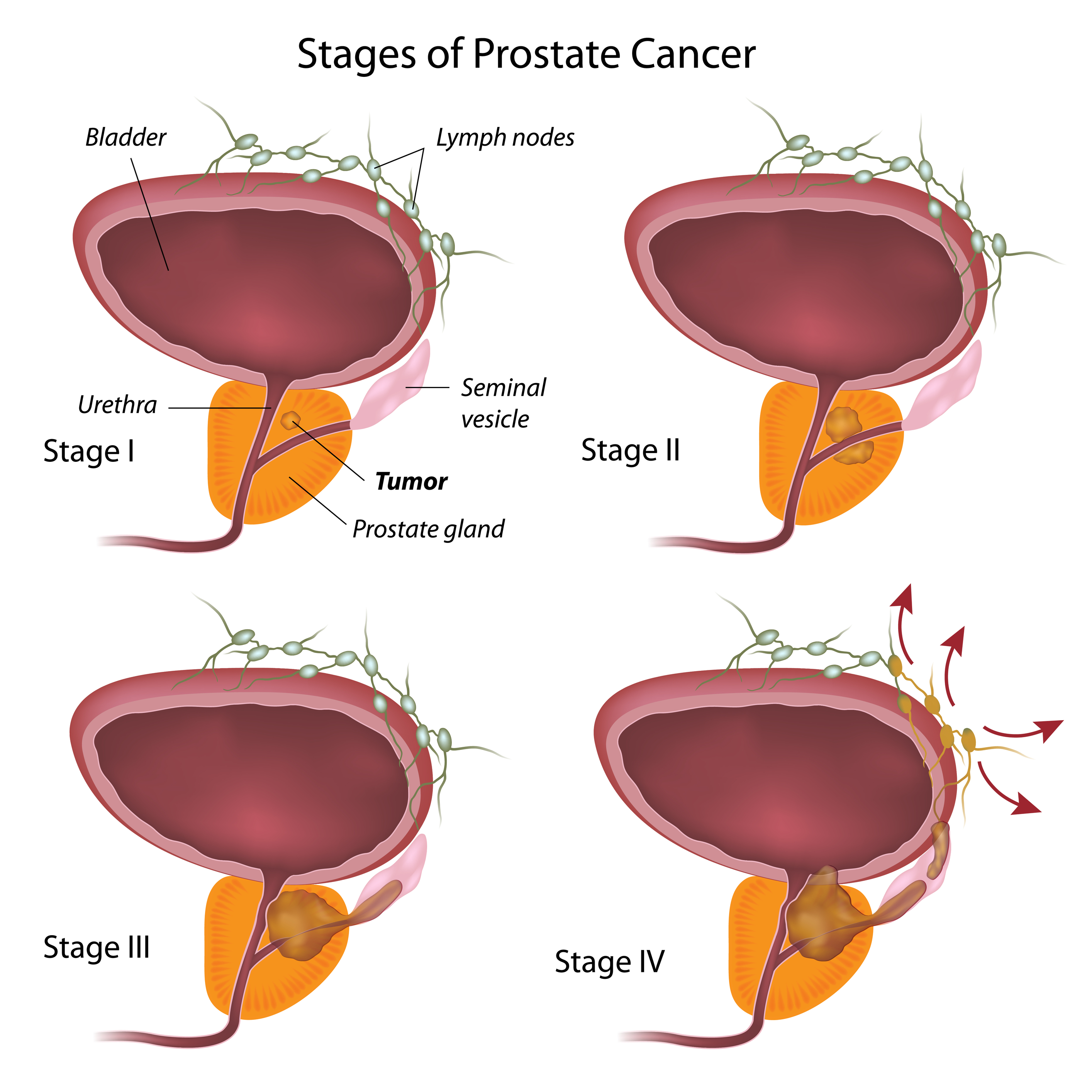 Prostate Cancer Stages University Health News