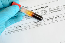 Are You Keeping Tabs on Your PSA Levels?