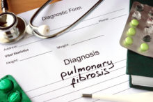 Pulmonary Fibrosis Can Take Your Breath Away