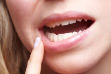 Receding Gums: How to Treat a Common Condition