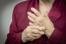 Rheumatoid Arthritis: Treating a Chronic and Inflammatory Autoimmune Disease