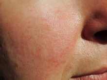 Rosacea Natural Treatment: Avoid Triggers and Reduce Social Anxiety
