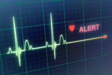 Don't Wait for Signs of a Heart Attack to Know Your Risk