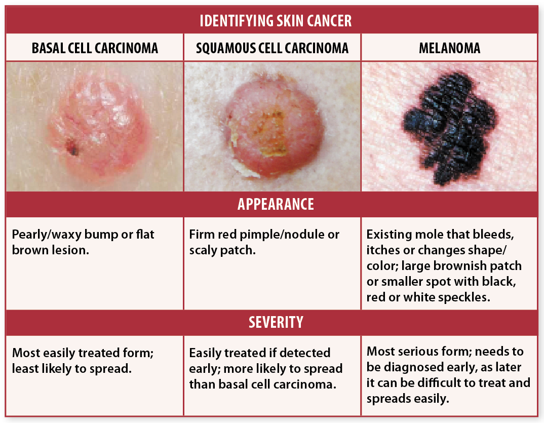 Skin cancer signs self checks may help you avoid deadly recurrence skin cancer signs nvjuhfo Images