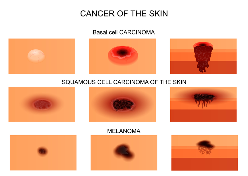 3 Skin Cancer Types and Their Warning Signs - University ...