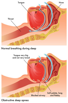 Sleep Apnea Symptoms: How a Sleep Study Test Can Help